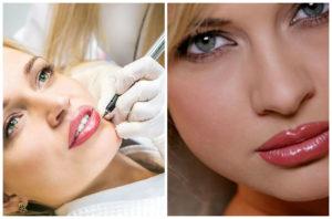 Формы губ у женщин, и как их изменить без операции