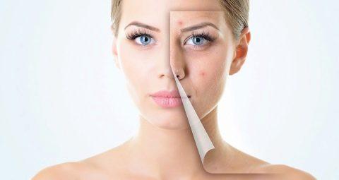 Уход за проблемной кожей лица: особенности и секреты красоты