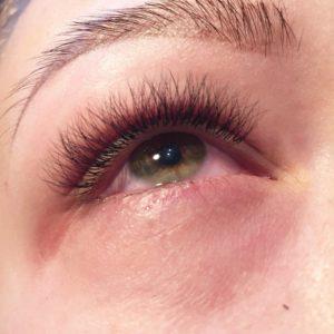 чешутся глаза после наращивания ресниц: причины и лечение